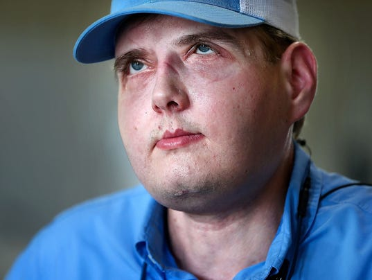 face transplant An american firefighter given a face transplant one year ago has described how he now feels like a normal guy patrick hardison, 42, from senatobia, mississippi, was badly injured when he ran into a burning house to rescue a woman in 2001 his face.