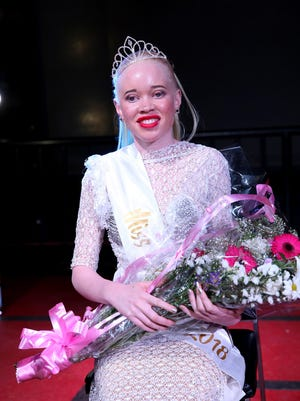Miss Albinism Zimbabwe 2018 winner Sithembiso Mutukura poses for a picture  with her crown after a beauty contest featuring people with albinism in Harare, Zimbabwe, on March 16, 2018.