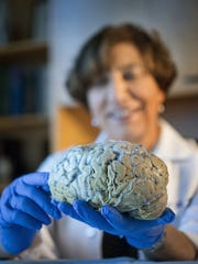 Dr. Claudia Kawas, who oversees The 90+ Study, holds the brain of a normal 74-year-old woman at UCI in Irvine, Calif. The research examines lifestyle, and participants undergo a one-time brain imaging and memory tests every six months, to detect cognitive decline.