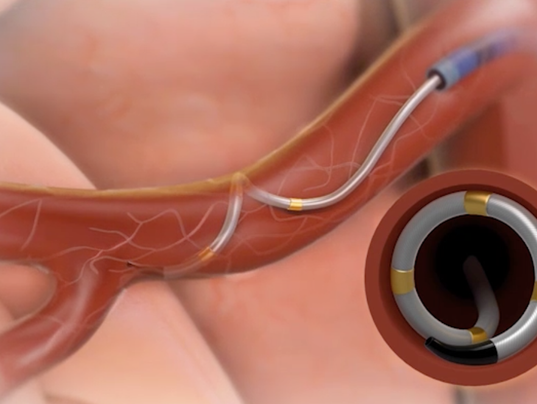 """latest report renal denervation devices symplicity The medtronic symplicity spyral renal denervation catheter system  devices for  a medical therapy called """"renal denervation,"""" in which a doctor  now fresh data  from a new """"proof of concept"""" trial presented at an industry."""
