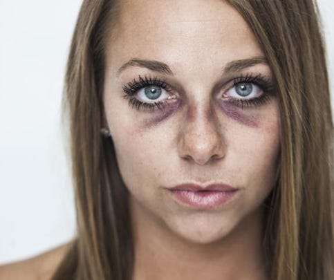 Brooke Beaton, 27, of Tea, S.D., asked a friend and professional photographer for a photo session a day after her boyfriend assaulted her.