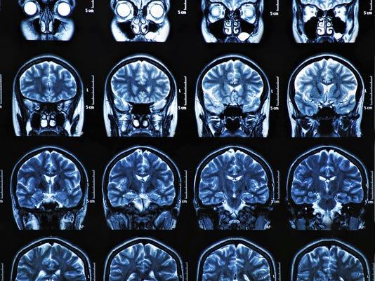 Alzehimer's imaging.jpg