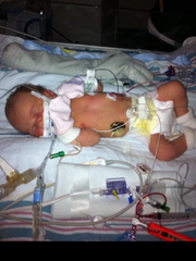 Born four weeks premature with no heartbeat, Addison