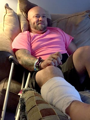 Lee Dorchak, 36, of Warren watches TV with his family Wednesday, Oct. 4, 2017, resting his bandaged leg where a bullet struck him Sunday, Oct. 1, 2017 in Las Vegas during the nation's worst-ever mass shooting.