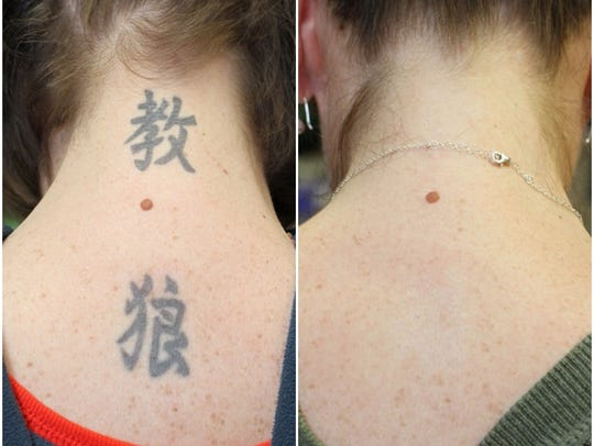 Before and after images of tattoos removed from the