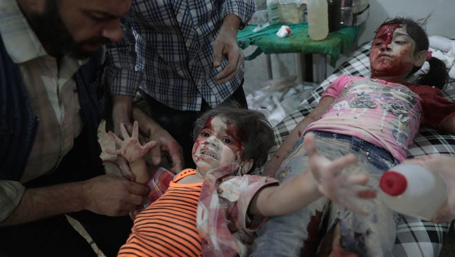 A Syrian girl reacts in pain as a wounded child lies next to her at a make-shift hospital following reported government air strikes on the rebel-held town of Douma, east of the capital Damascus on September 12, 2016.
