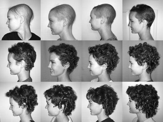 Maddy Strine, a student at University of Pittsburgh who is from Manchester Township, has taken a photo each month to document her hair loss during chemotherapy treatment and how her hair has grown back since she completed her treatment.for lymphoma. Her straight, dirty blond hair grew back darker and curlier.