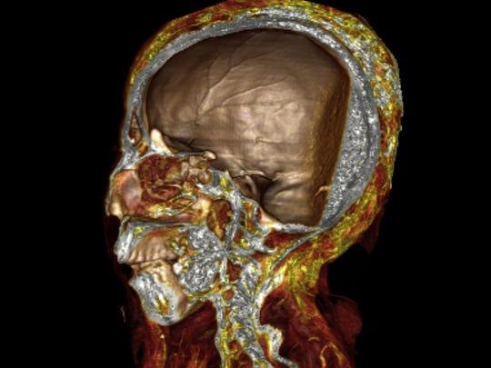 Resin-packed mummy skull