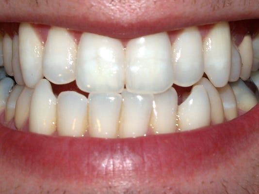 STG0930 dvt dental hygiene 2 .jpg
