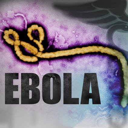 http://www.gannett-cdn.com/-mm-/ed20859eea3103bc218671aabb50484f03fb6928/c=172-0-1672-1500&r=x423&c=420x420/local/-/media/KXTV/KXTV/2014/08/19/1408498895000-ebola-virus.jpg