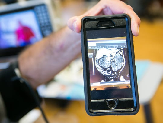 Dave Amalfitano, 47, shows a scan of his kidneys which