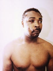 This file photo of Rodney King was taken three days after his videotaped beating in Los Angeles on March 6, 1991. The photo is one of three introduced into evidence by the prosecution in the trial of four LAPD officers in a Simi Valley, California Courtroom, March 24, 1992.  The acquittal of four police officers in the videotaped beating of King sparked rioting that spread across the city and into neighboring suburbs. Cars were demolished and homes and businesses were burned. Before order was restored, 55 people were dead, 2,300 injured and more than 1,500 buildings were damaged or destroyed.