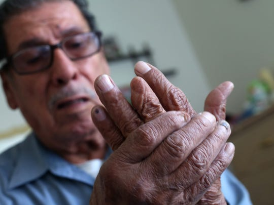 Manuel Robles Arambula lost the tip of his finger in a tractor accident about two decades ago.