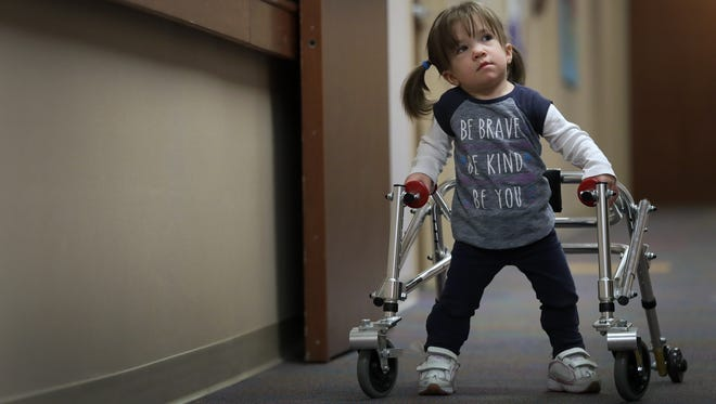 Avi Brennan, 2, works hard trying to walk during a physical therapy session in April at Children's Hospital of Wisconsin in Neenah.