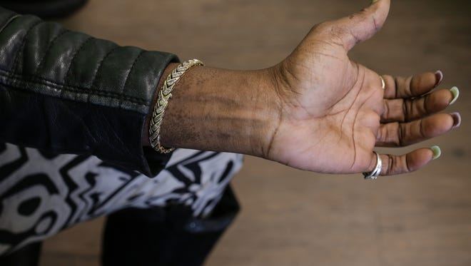 Flint resident Sherry Savage shows some areas on her wrists where she says she has developed a rash she claims is due to using the Flint water on Friday February 5, 2016.