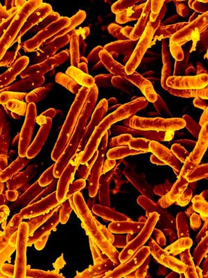 Mycobacterium tuberculosis bacteria, which cause tuberculosis (TB) in human beings.