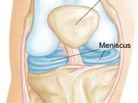 Meniscus Location (photo via google images)