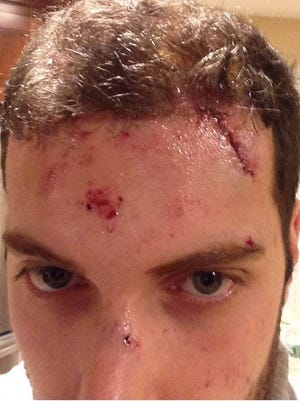 Frank Kopicki received stitches to close a large gash across his forehead after ice flew through his windshield as he drove across the Tappan Zee Bridge.