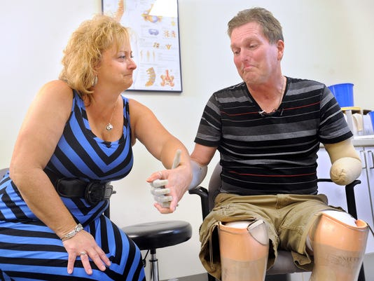 For for first time in over six months, Paul Miller holds the hand of his wife Shelly by using his myoelectric prosthesis at Ability Prosthestics and Orthotics on Thursday, August 22, 2013.  Miller was struck with Streptococcus Pneumoniae on Sunday, Feb 3, 2013, which resulted in the amputation of his hands and feet.