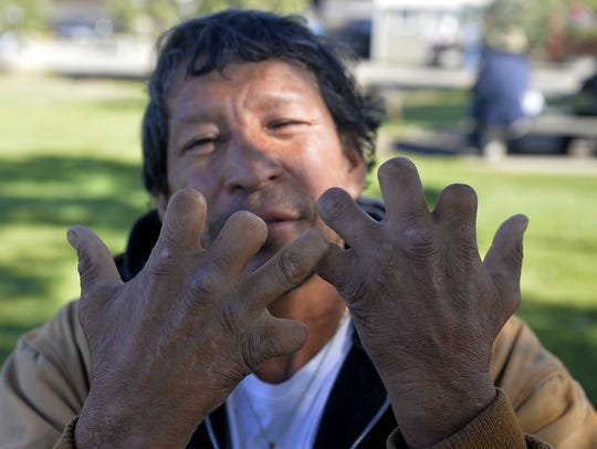 Melvin Azure shows of his hands at Triangle Park in