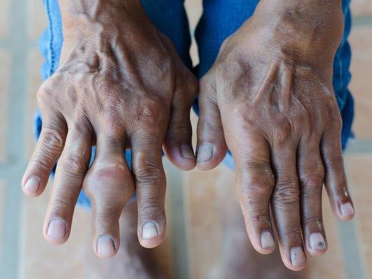 MNH 0622 Gout.jpg