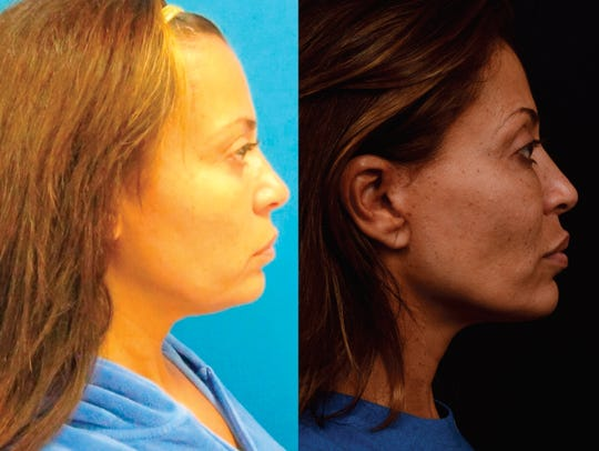 """Before and after photos of Dolores Catania of """"Real"""
