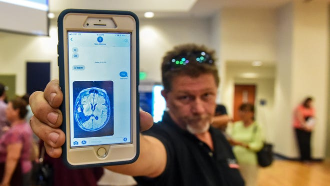"""""""Rare cancer is one in a million, not one in a county,"""" said Mark Campbell of Port St. Lucie after holding out a post-operative brain surgery image of his mother-in-law, Betty Fagundes of Port St. Lucie, Tuesday, June 12, 2018, during an open house to discuss glioblastoma cancer concerns within the community hosted by the The Florida Department of Health in St. Lucie in Bailey Auditorium at IRSC's Treasure Coast Public Safety Training Complex in Fort Pierce. Although Fagundes survived the removal a large, grade four glioblastoma tumor, it is beginning to grow back, according to Campbell. To see more photos, go to TCPalm.com."""