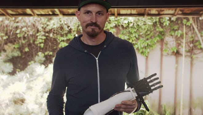 Mick Ebeling with prosthetic arm made with 3D printer