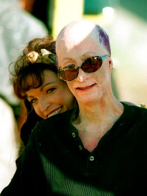 In this Sept. 20, 1996 file photo, David Rothenberg clowns around with country singer Kelli Lidell in Los Angeles. Rothenberg, known as Dave Dave, who was badly scarred at the age of 6 when his father tried to burn him to death, died July 15, 2018 in Las Vegas. He was 42.