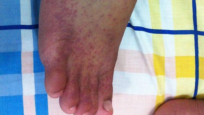 Chikungunya disease