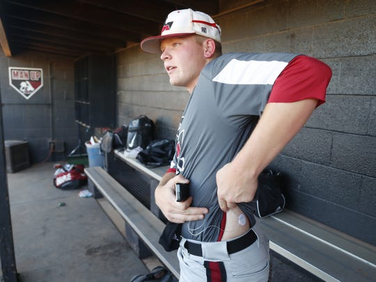 Riley Pagel shows where his pump's catheter goes into him in the dugout at Red Mountain High School in Mesa, Ariz. on April 9, 2018. Typically Riley doesn't wear the pump during games.