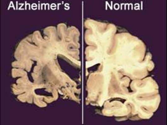 IMG_Alzheimer_s_Research_10_1_0Q2SO314.jpg_20121204.jpg