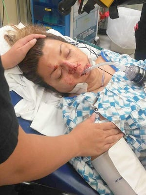 Amy Castanon receives care after being struck by lightning on Aug. 28.