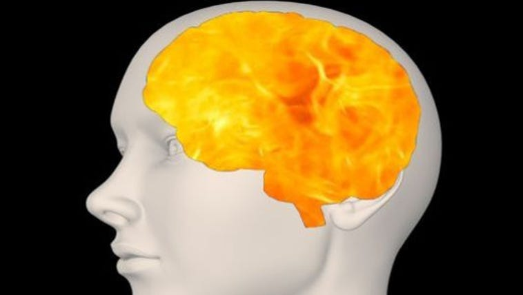 Exploding head syndrome has gives the sufferer the