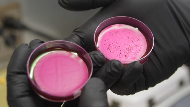 Two examples of bacteria tests.