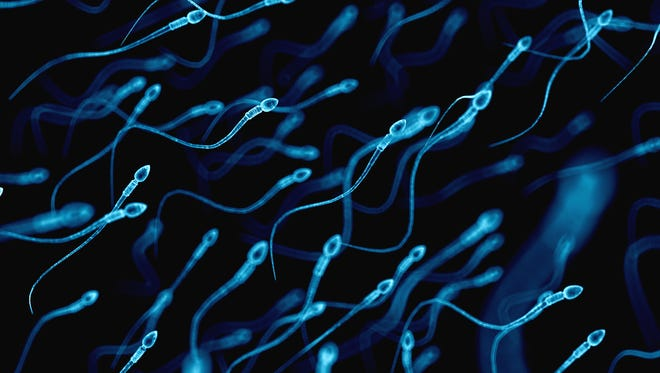 Cutting and cauterizing a man's vas deferens keeps these little swimmers, better known as sperm, from leaving the testes.