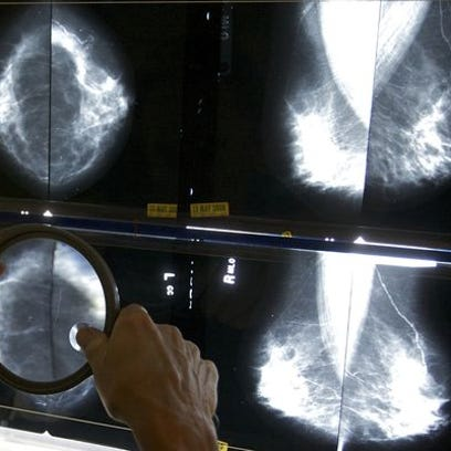 Doctor scanning X-rays
