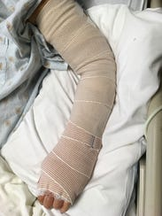 Glenda Sessions' hand after surgery following infection