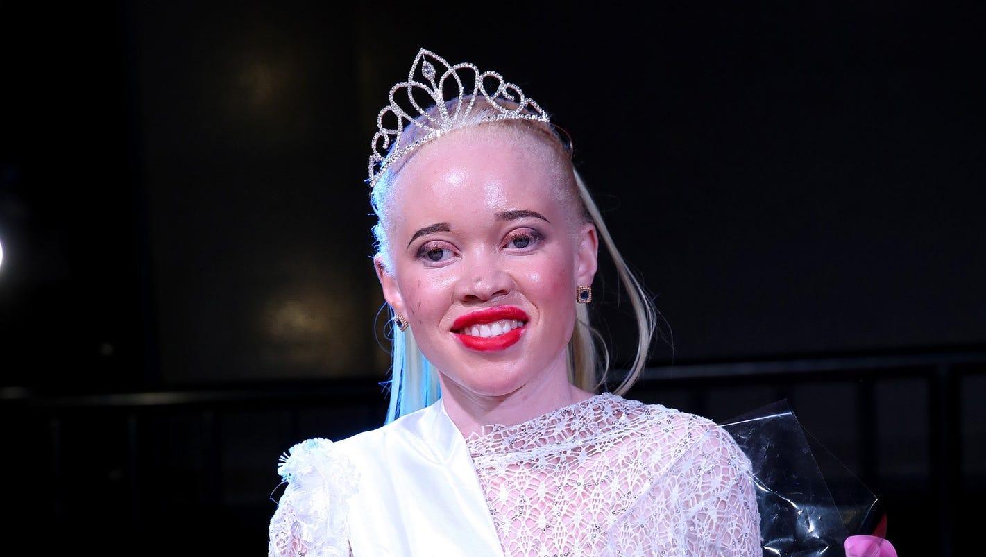 Zimbabwe crowns first 'Miss Albino' in bid to tackle stigma