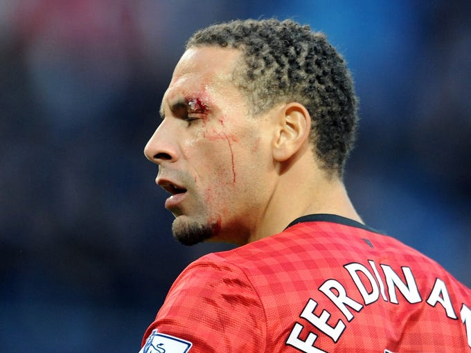 Manchester United's Rio Ferdinand walks off the pitch after being hit in the face by a coin.