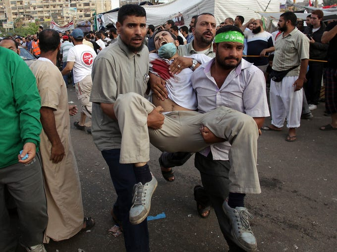Supporters of ousted Egyptian President Mohammed Morsi carry an injured man to a field hospital following clashes with security forces on July 27 in Nasr City, Egypt. Thirty-eight demonstrators were killed and field hospitals were overwhelmed with the wounded.