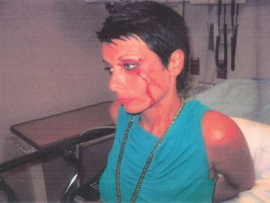 A Naples police photo from the May 17, 2012, incident in the 400 block of Bayfront Place shows Monika Mozolicova with a bloody gash above her left eye after a scuffle with police.