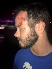 Injuries Harry Claiborne sustained during a crash between a truck he was in and a Liberty County Sheriff officer's truck on Saturday.