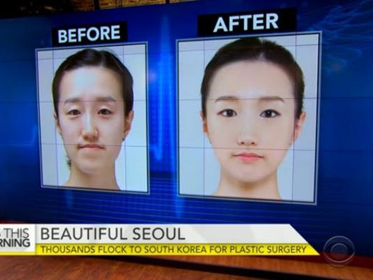 plastic surgery boom in south korea Trouble brewing in south korea's plastic surgery paradise by ju-min park, reuters the boom in south korea's $5 billion plastic surgery industry - that's a quarter of the global market according to the country's antitrust watchdog.