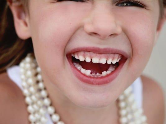 635924230858524859-little-girl-missing-teeth-1456777427698-659697-ver1.0.jpg