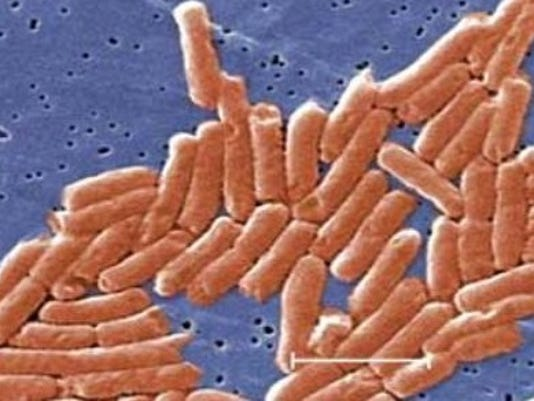 Wash health officials say 134 cases of salmonella linked for Kosher cleaning requirements
