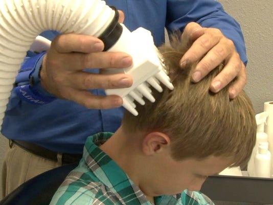 'Super Lice' spreads to California