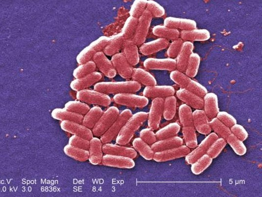 635797255883240917-e-coli-biology-AT5C77V-x-large