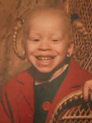 Fashion designer Sara Crawford-Jones, shown in a family photo as a youngster, will be giving a TEDx Wilmington talk on growing up albino.
