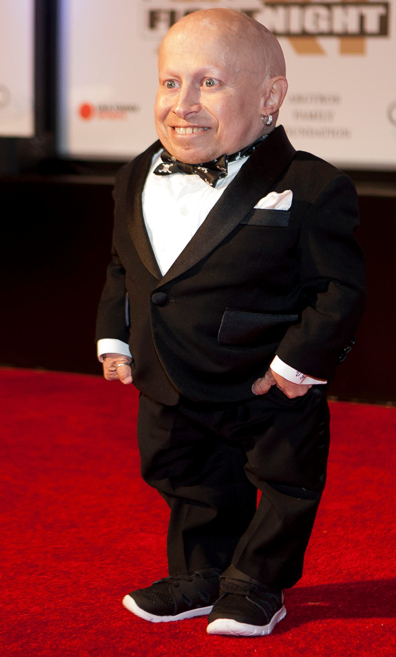 Verne troyer Nude Photos 5